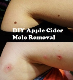 Danger of DYI mole removal